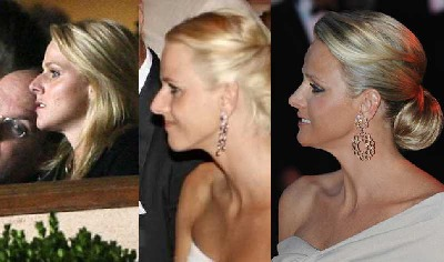 princess of monaco plastic surgery - before and after - Nose Reconstruction