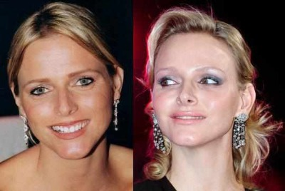 charlene wittstock plastic surgery - princess of monaco - before and after lip enhancement