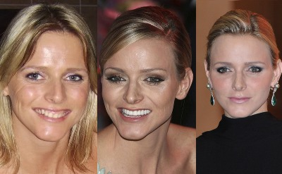 princess of monaco charlene wittstock plastic surgery - botox and veneers - before and after