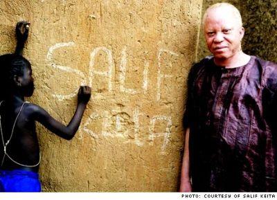 famous men who are albinos - salif keita