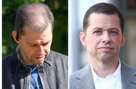 john cryer hair transplant before after