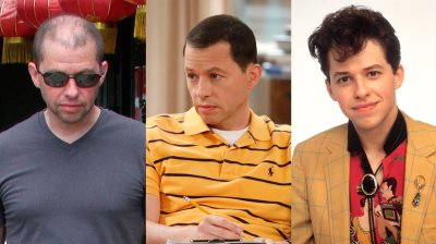 jon cryer hair treatment - before and after photos