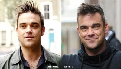 robbie williams before and after hair transplant photos