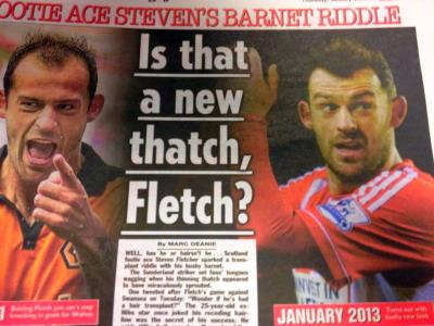steven fletcher hair transplant - before and after photos