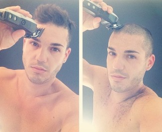 anthony callea - shirtless and bald