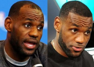 lebron james before and after hair transplant