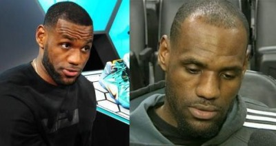 lebron james hair transplant before and after - 2013 vs 2014