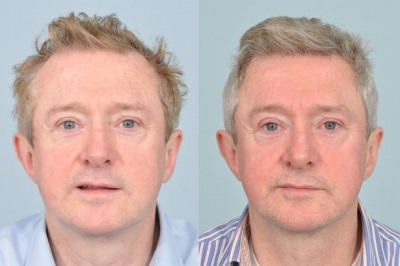Louis Walsh hair transplant - before and after photos