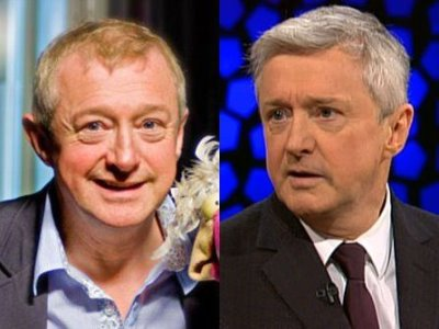 Louis Walsh hair transplant transformation - before and after photos