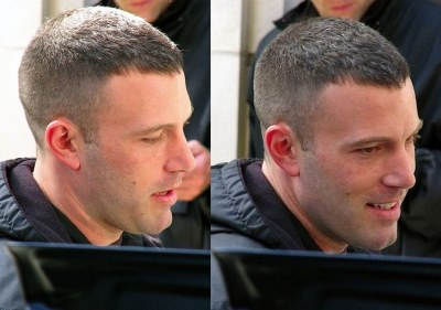 ben affleck hair transplant before and after - the town3