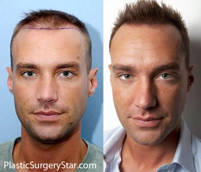 calum best hair transplant - before and after photos