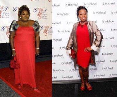 celebrity gastric bypass surgery - star jones - before and after