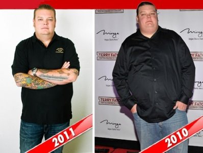celebrity lap band surgery - corey harrison - before and after weight loss