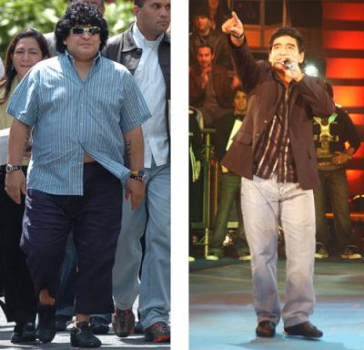 diego maradona - before and after gastric bypass surgery