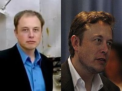 elon musk before and after hair transplant - photos2