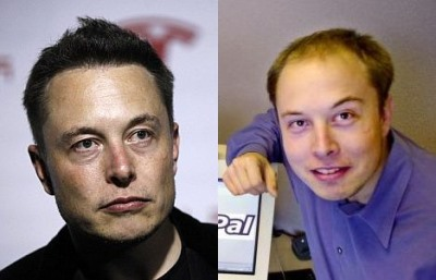 elon musk before and after hair transplant pics