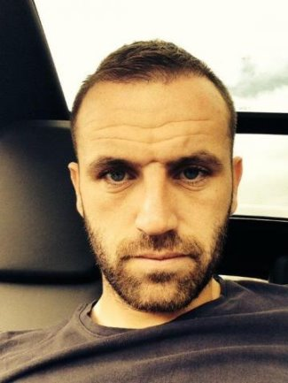 james mcfadden hair transplant - after 12 weeks