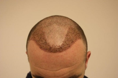james mcfadden hair transplant - after six days