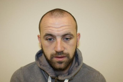 james mcfadden hair transplant - after three weeks
