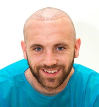 james mcfadden hair transplant after