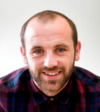 james mcfadden hair transplant before