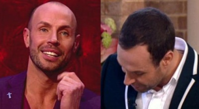jason gardiner hair transplant- before and after photos