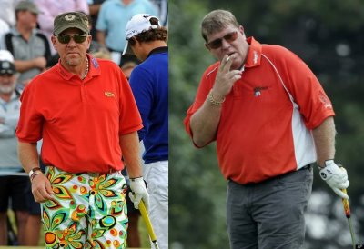 john daly lap band surgery before and after photos