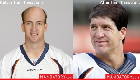 peyton manning hair transplant - before and after - photos2