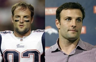 wes welker before and after hair surgery with dr robert leonard