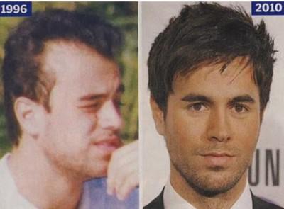 Enrique Iglesias Hair Transplant