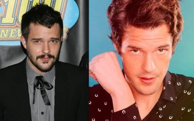 brandon flowers hair transplant before and after6