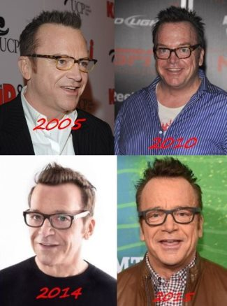 tom arnold hair transplant before and after - hair evolution 2005 to 2015-3