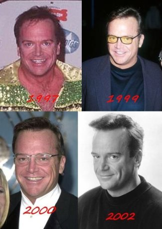 tom arnold hair transplant before and after - hair evolution 97 to 2002-3