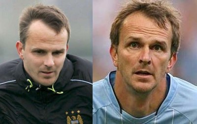 dietmar-hamann-hair-transplant-before-after2