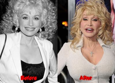 celebrities with breast implants before and after dolly parton
