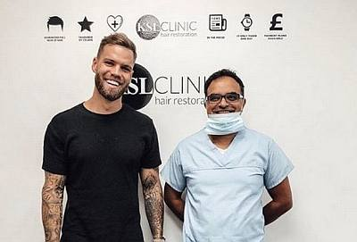 hair transplant for young men - dom lever