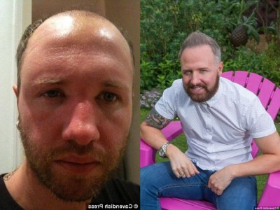 chris steed hair transplant before after - how much
