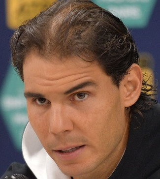 rafael nadal hair transplant before and after photos3