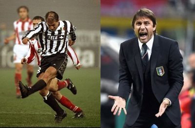 antonio conte fake hair - before and after2