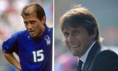 antonio conte hair transplant before and after photos