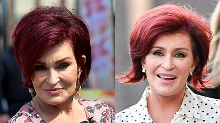 sharon osbourne plastic surgery - before and after facelift - photos