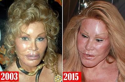 bad celebrity plastic surgery Jocelyn Wildenstein evolution