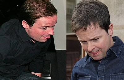 declan donnelly hair transplant before and after