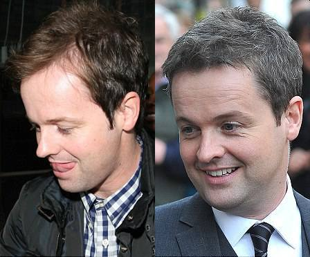 declan donnelly hair transplant propecia