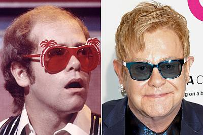 elton john hair transplant before and after photos