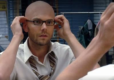 joel mchale bald hair loss3
