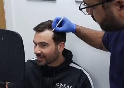 alex miller hair transplant - british hair centre
