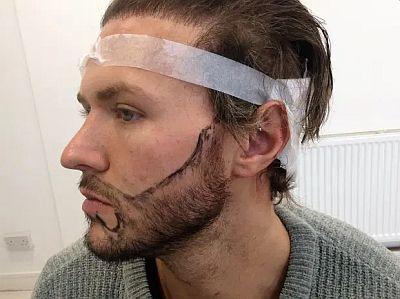 kyle christie plastic surgery - beard transplant